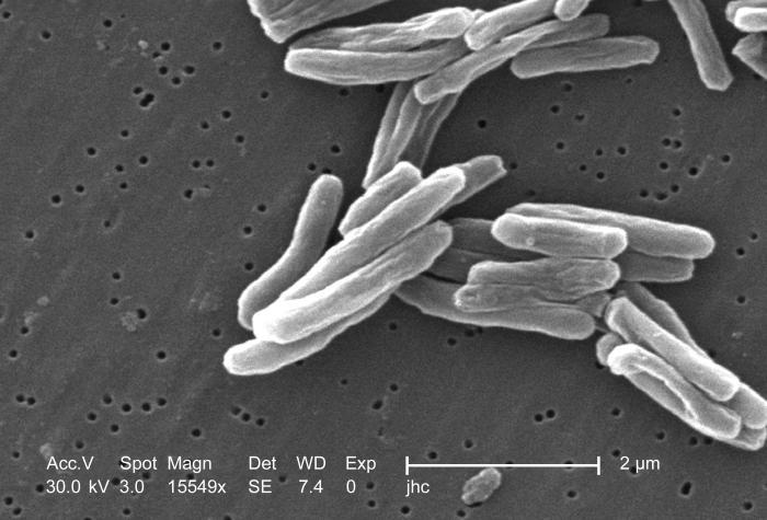"""Der Übeltäter: Die meisten Tuberkulose-Infektionen werden vom """"Mycobacterium tuberculosis"""" verursacht. Foto von Janice Carr (CDC/ Dr. Ray Butler; Janice Carr)"""